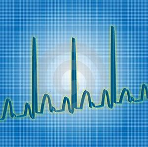 Blu di battito cardiaco Fotografie Stock Libere da Diritti