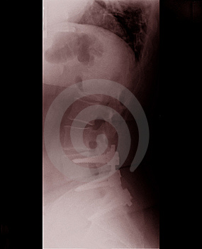 Spine X-ray Royalty Free Stock Images - Image: 13563009