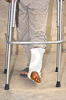 Fractured Feet Stock Photos - Image: 13974683