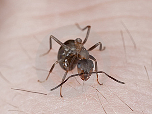 Angry Ant Biting Hair On Human Hand. Stock Photos - Image: 14063363