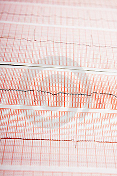 ECG Royalty Free Stock Photo - Image: 14154925