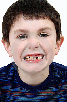 Young Boy Grimacing Stock Images - Image: 14539434