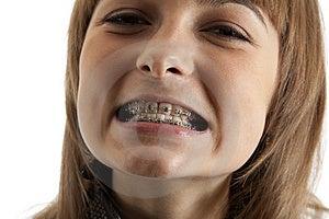 Girl Smiles With Bracket On Teeth Stock Photo - Image: 14769730