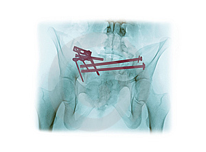 X-ray Of A Fractured Pelvis Stock Photos - Image: 15182923