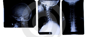 Neck X-Ray - Front And Side Royalty Free Stock Photos - Image: 16323678