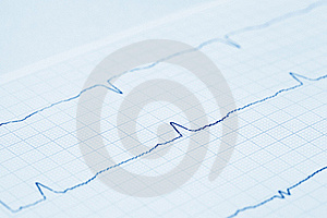 Close-up View On Cardiogram (blue Toned) Royalty Free Stock Photography - Image: 19300937