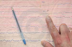Indicate An Element Of ECG Stock Photos - Image: 20262593