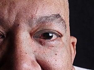 Old Man's Eye Stock Image - Image: 23037621