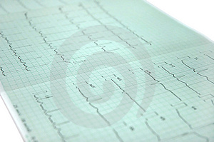 Electrocardiogram Royalty Free Stock Images