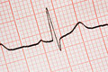 Close up of ecg graph Stock Photos