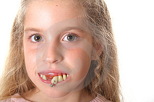Pretty Little Girl With Ugly Teeth (copy Space Rig Stock Photography - Image: 3641172