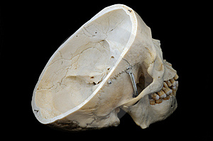 Skull With Interior View Royalty Free Stock Photos - Image: 5142208