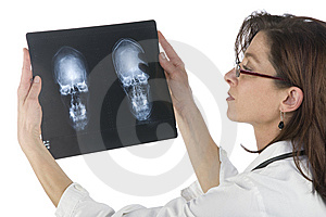 Woman Doctor Whit Radiography Stock Photos - Image: 6883563