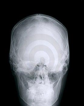 череп X луча Стоковое Изображение - изображение: 8594771