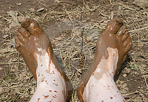 Dirty Feet Stock Images - Image: 8901184
